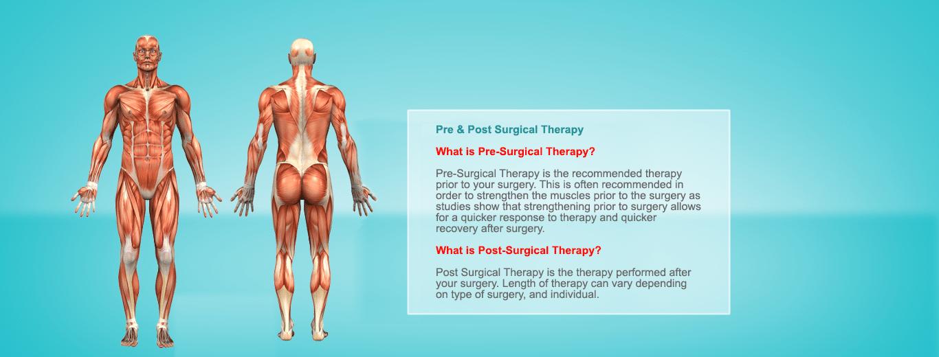 preandpostsurgical