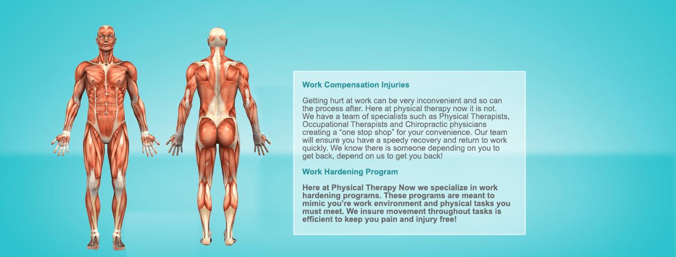 workcompensation